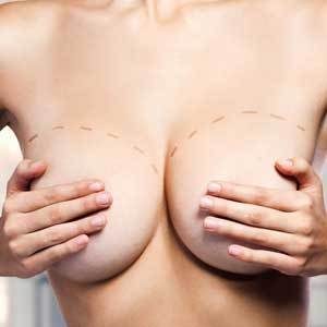 Remove & Replace Implants