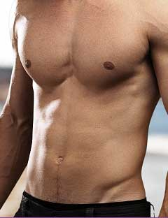 male-breast-reduction-gyneacomastia