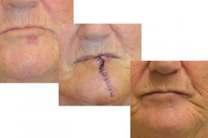 skin cancer lip plastic surgery