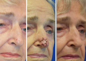 nose skin cancer plastic surgery