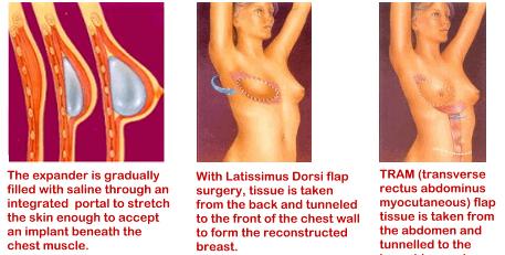 breast-recon